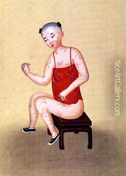 Child with smallpox (2) Oil Painting - Anonymous Artist