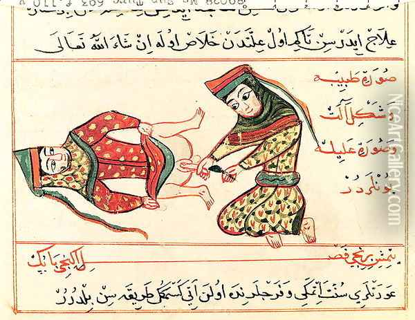 Ms Sup Turc 693 fol.110v Midwife operating on a hermaphrodite, 1466 Oil Painting - Charaf-ed-Din