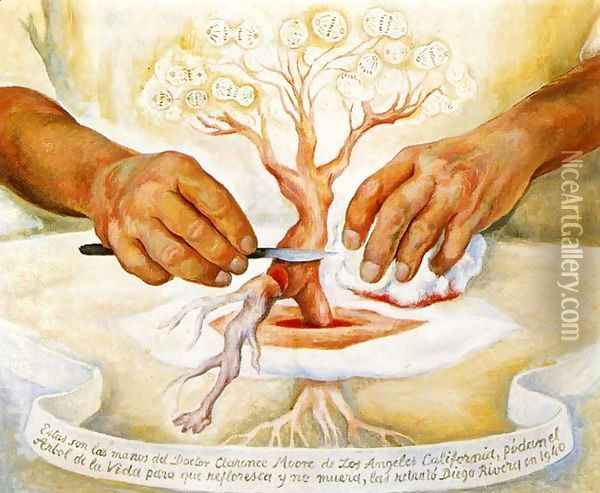 The Hands of Dr Moore (Los manos del Dr Moore) 1940 Oil Painting - Diego Rivera